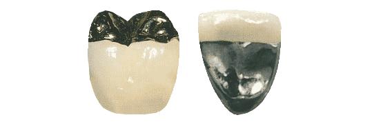 Metallkeramikkrone